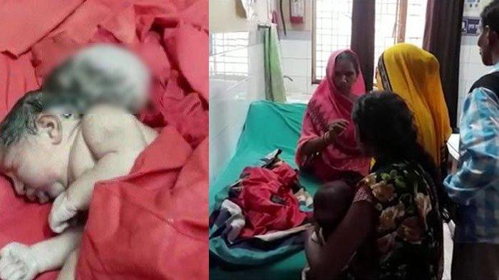 India: Rare birth disorders, baby born with 3 'Heads'